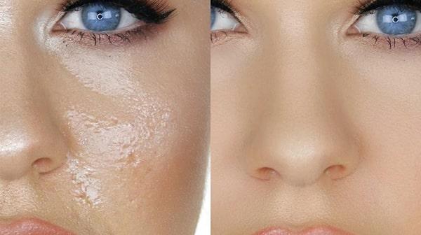 آرایش مخصوص پوست چرب
