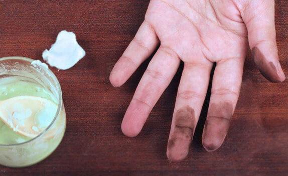پاک کردن لکه رنگ از پوست